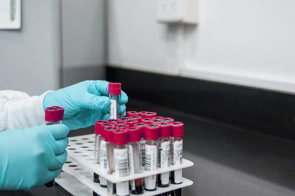 Morador de Sumaré de 38 anos morre com coronavírus