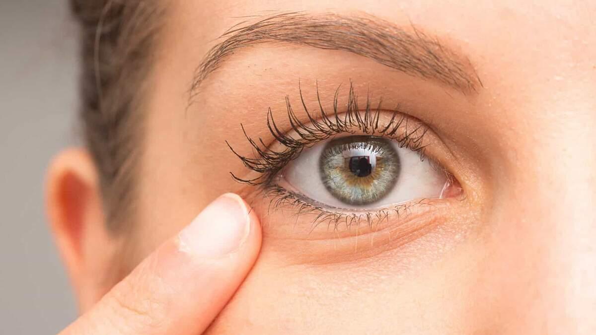 Entenda os fatores que pioram as olheiras