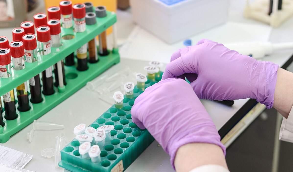 Brasil registra 377 mortes por coronavírus em 24h e total chega a 137.272
