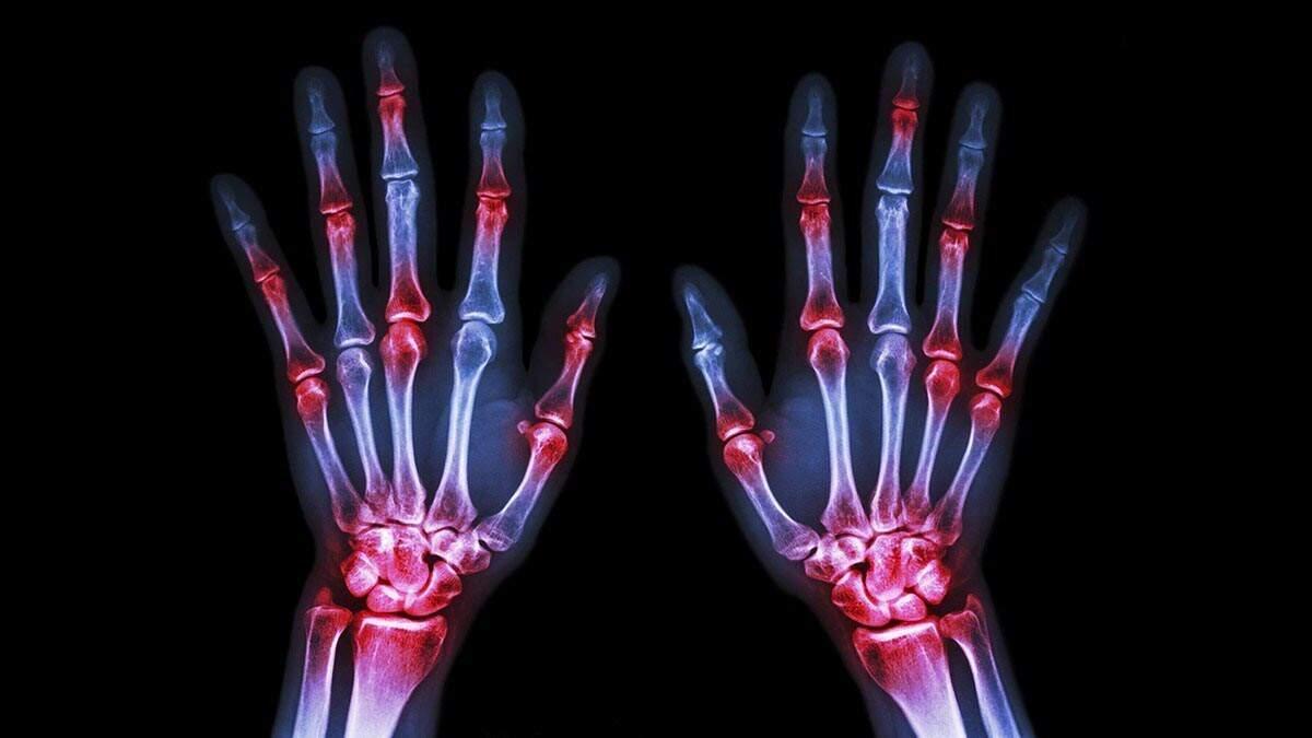 Brasileiros ignoram os sintomas da artrite reumatoide