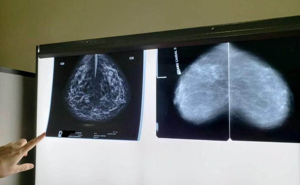 HM implanta sistema digital para mamografias em Americana